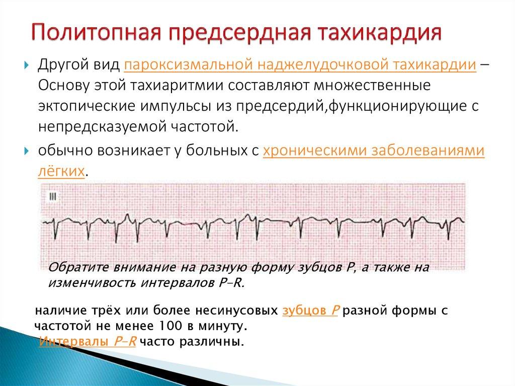 Предсердные тахикардии - кардиолог - сайт о заболеваниях сердца и сосудов