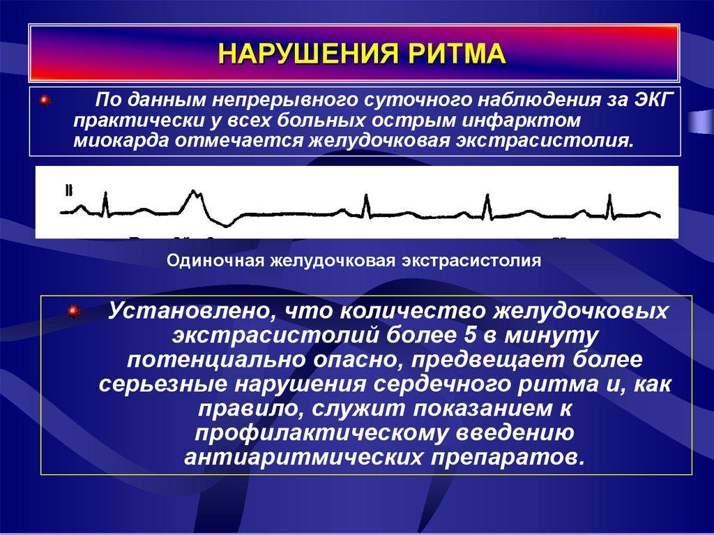 Нарушение ритма и проводимости сердца