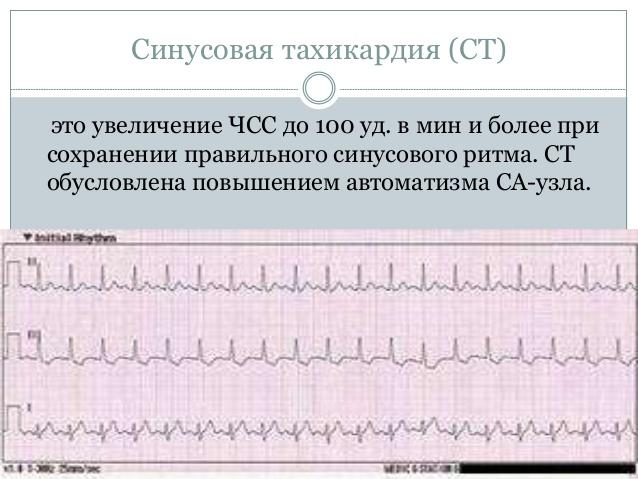 Тахикардия от нервов