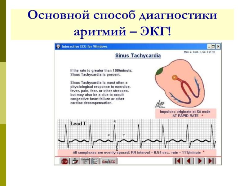 Можно ли делать массаж при аритмии сердца