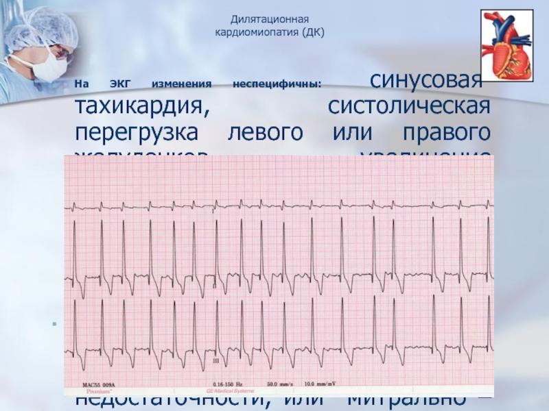 Лечение синусовой тахикардии