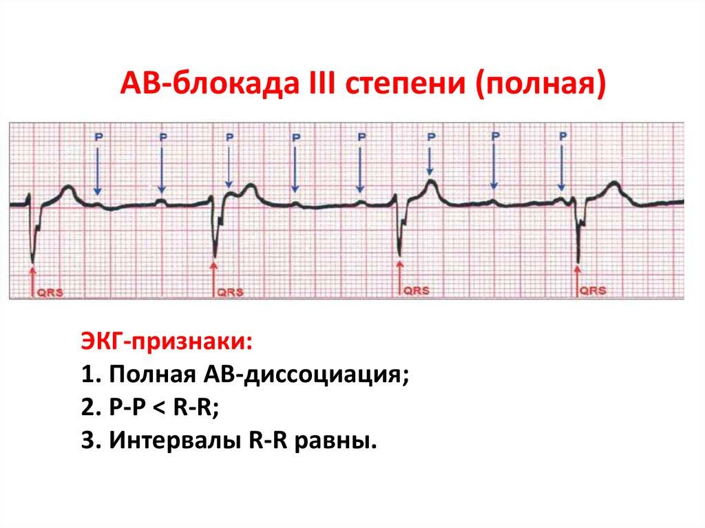 Лечение атриовентрикулярных (ав) блокад 1, 2 и 3 степени