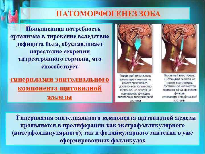 Аритмия и щитовидная железа - аритмия, железа, щитовидная
