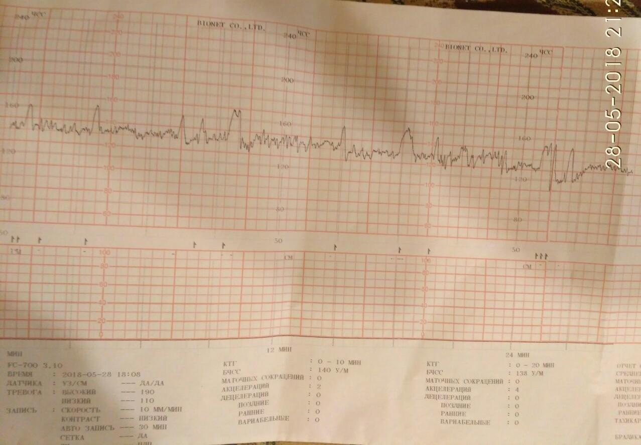 Вариабельность сердечного ритма и ее анализ