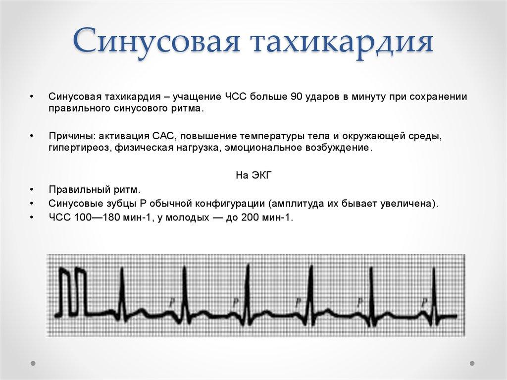 Тахикардия: понятие, формы, течение и симптомы, диагностика, тактика лечения