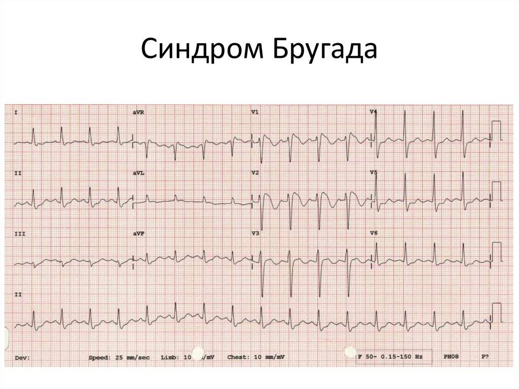 Причины, клиника, диагностика и лечение синдрома бругада