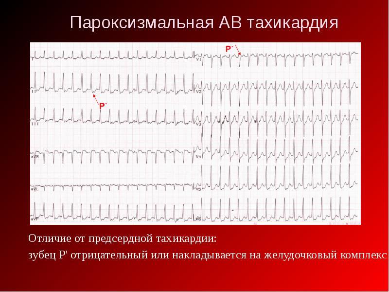 Ав реципрокная тахикардия пароксизмальная