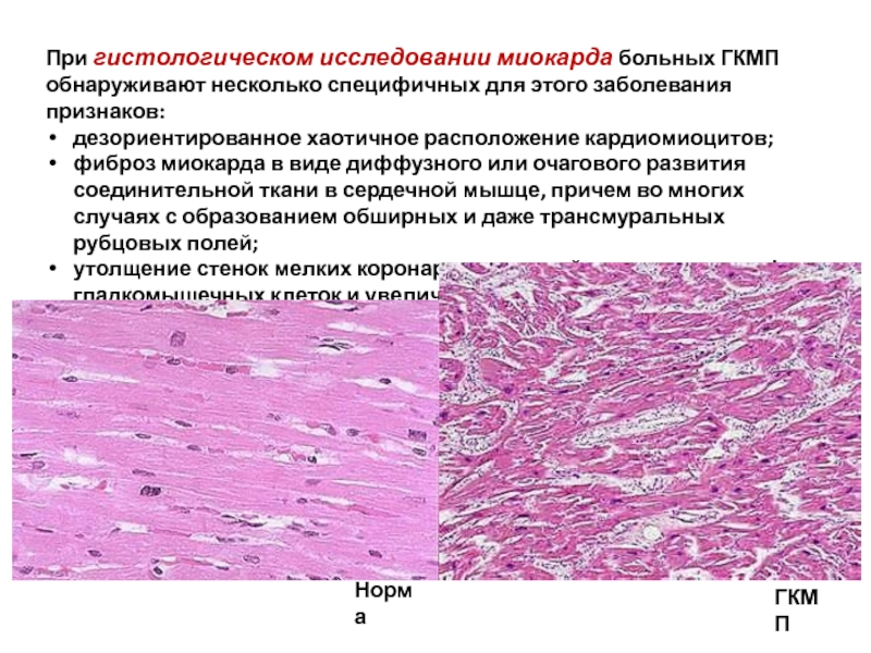 Гипертрофическая кардиомиопатия у кошек (диагностика, лечение) гкмп кошек (этиология, патогенез)