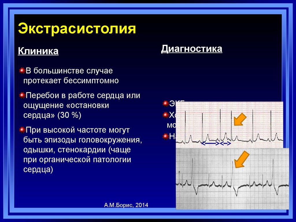 Экстрасистолия   симптомы   диагностика   лечение - docdoc.ru