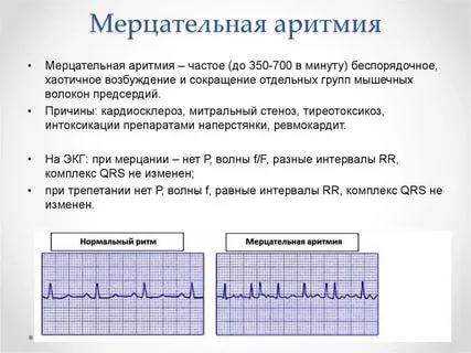 Симптомы и эффективное лечение аритмии сердца в домашних условиях