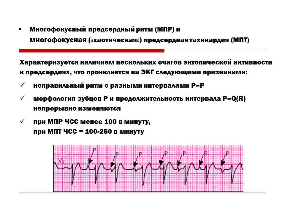 Пароксизмальная наджелудочковая (суправентрикулярная) тахикардия: причины, формы, классификация | кардио болезни