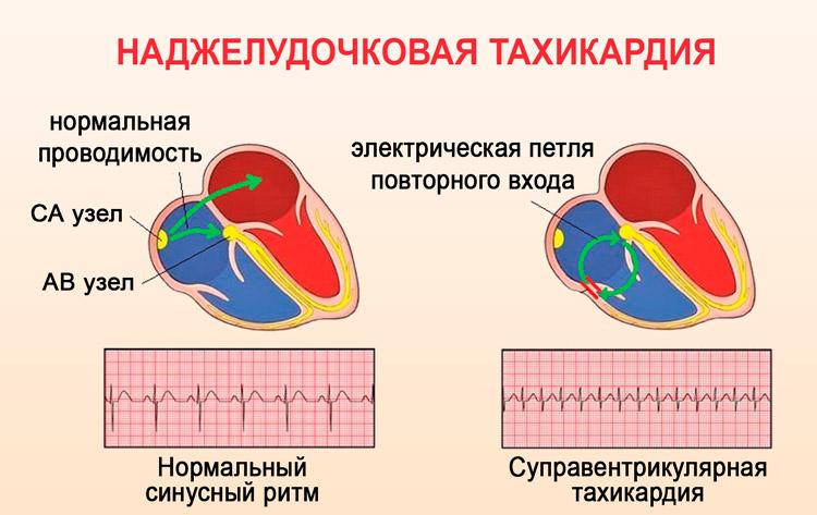 Наджелудочковая (суправентрикулярная) экстрасистолия: причины и симптомы, диагностика и лечение