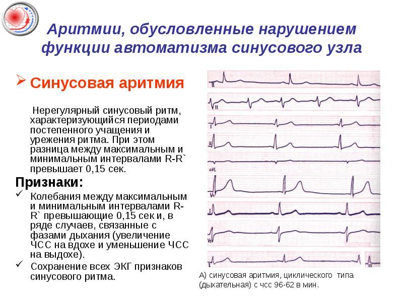 Массаж при мерцательной аритмии сердца. точечный массаж при аритмии