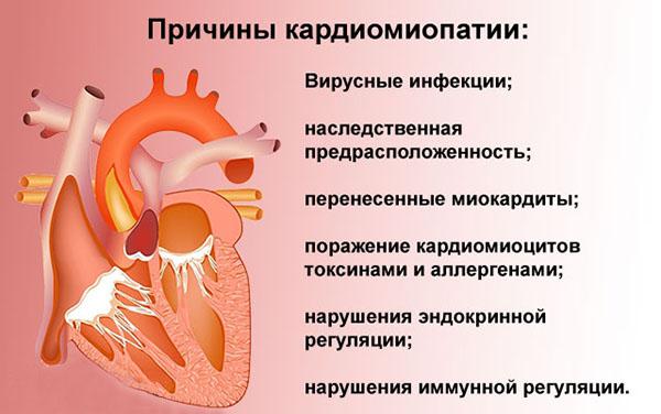 Что такое кардиомиопатия?