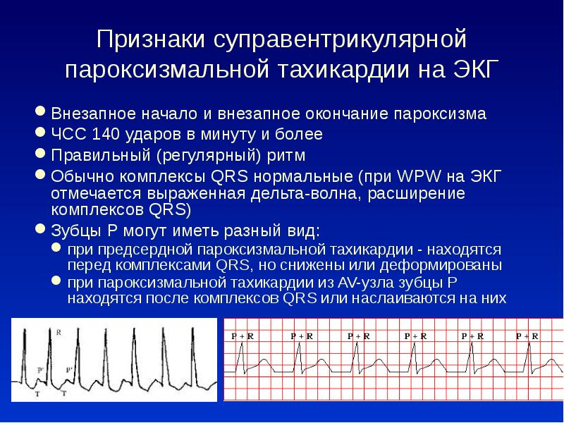 Неврологическая аритмия