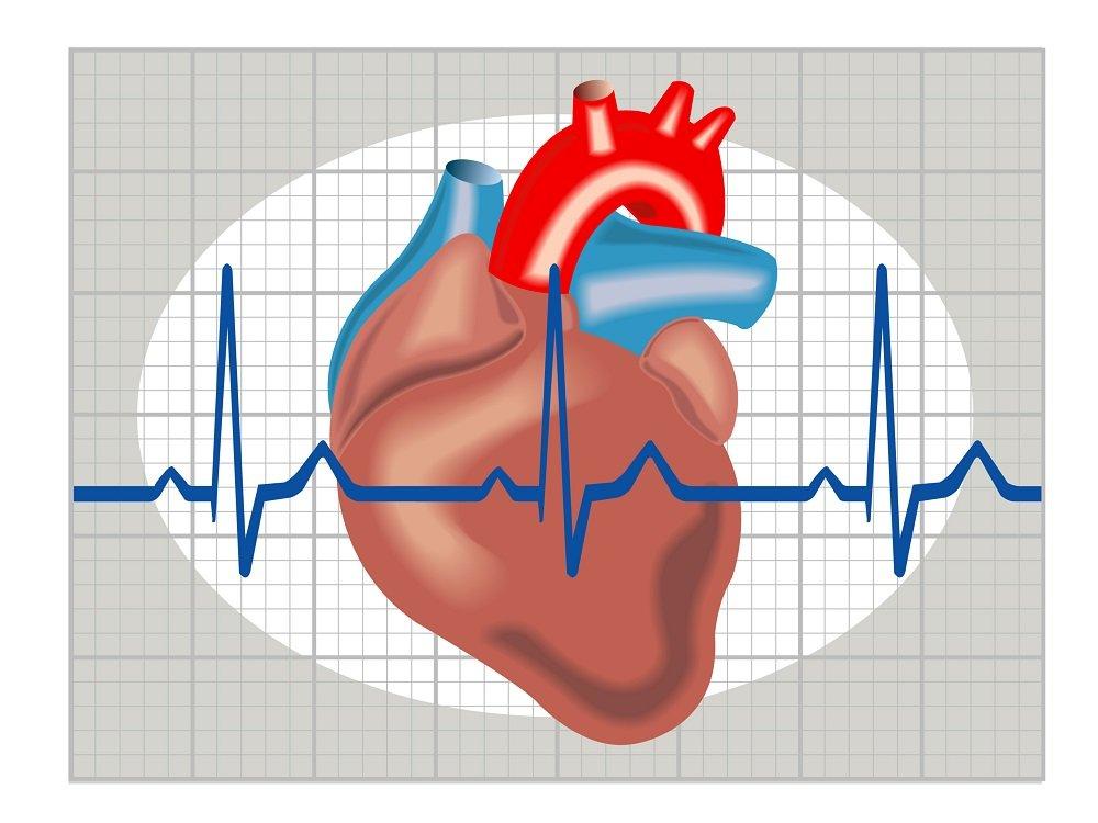 Все факты об экстрасистолии сердца: что это такое и как лечить