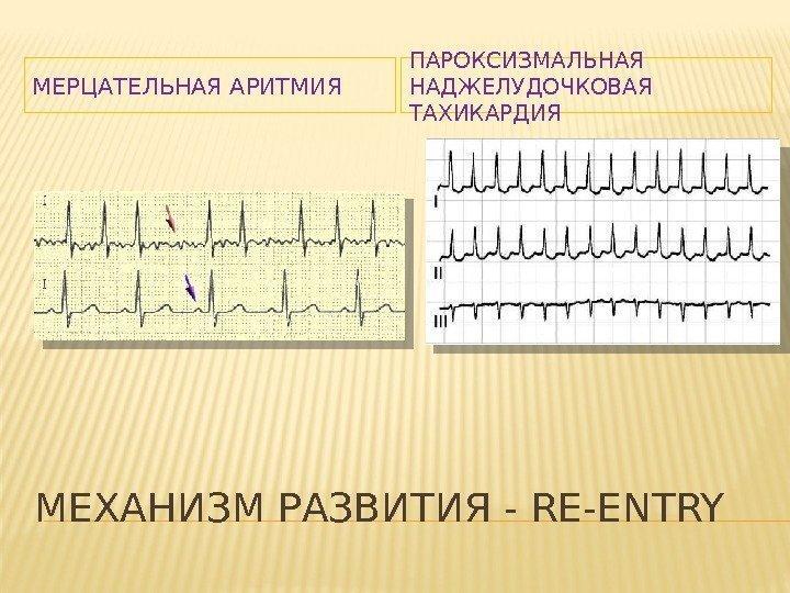Чем отличается аритмия от тахикардии?