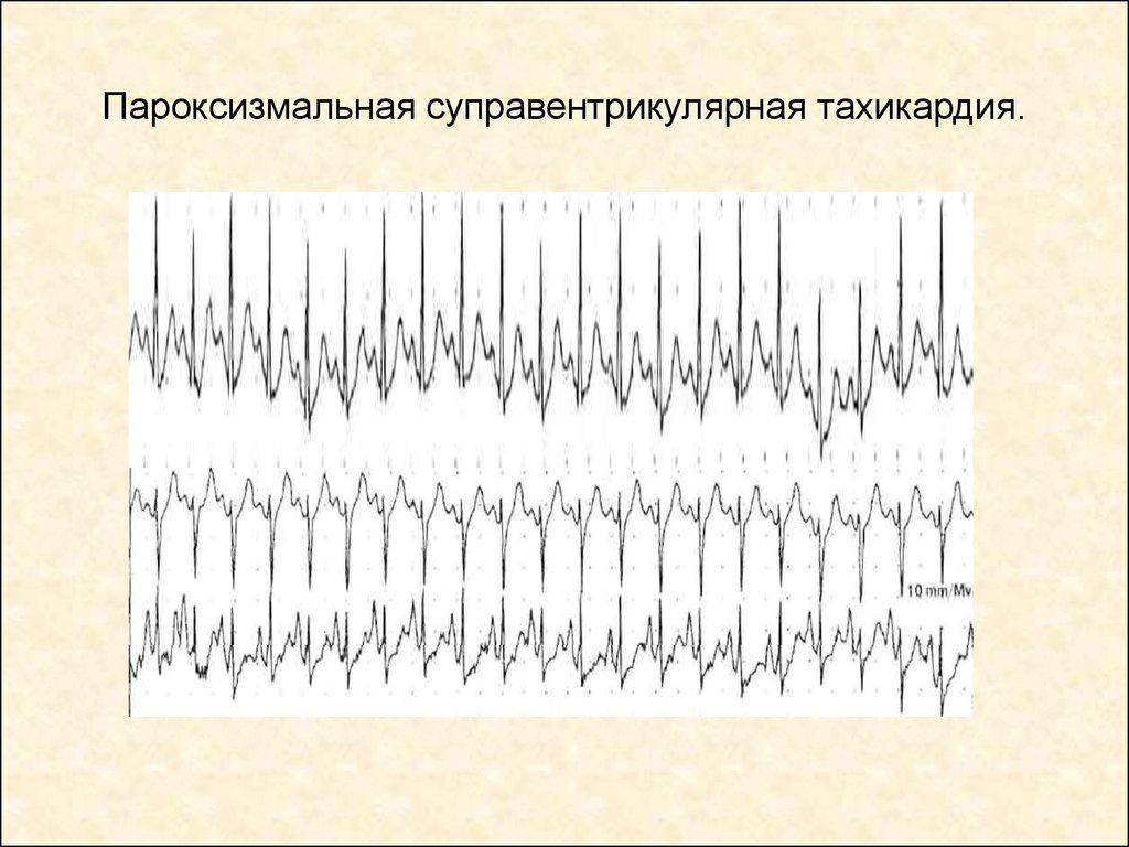 Экг при аврт, авурт - реципрокной тахикардии из ав-соединения