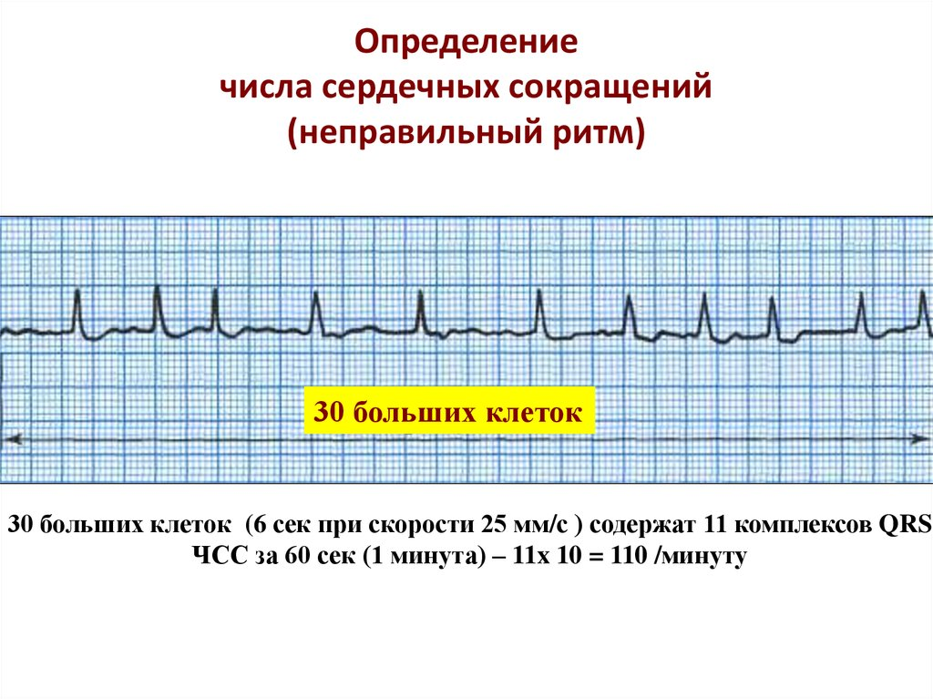 Точечный массаж при аритмии сердца. что можно при аритмии? как правильно жить после развития фибрилляции предсердий? акупунктурные точки при ударе которых останавливается сердце