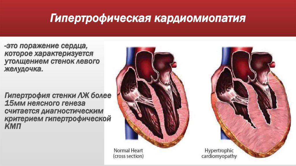 Кардиомиопатия различных видов: возникновение, диагностика и лечение болезни