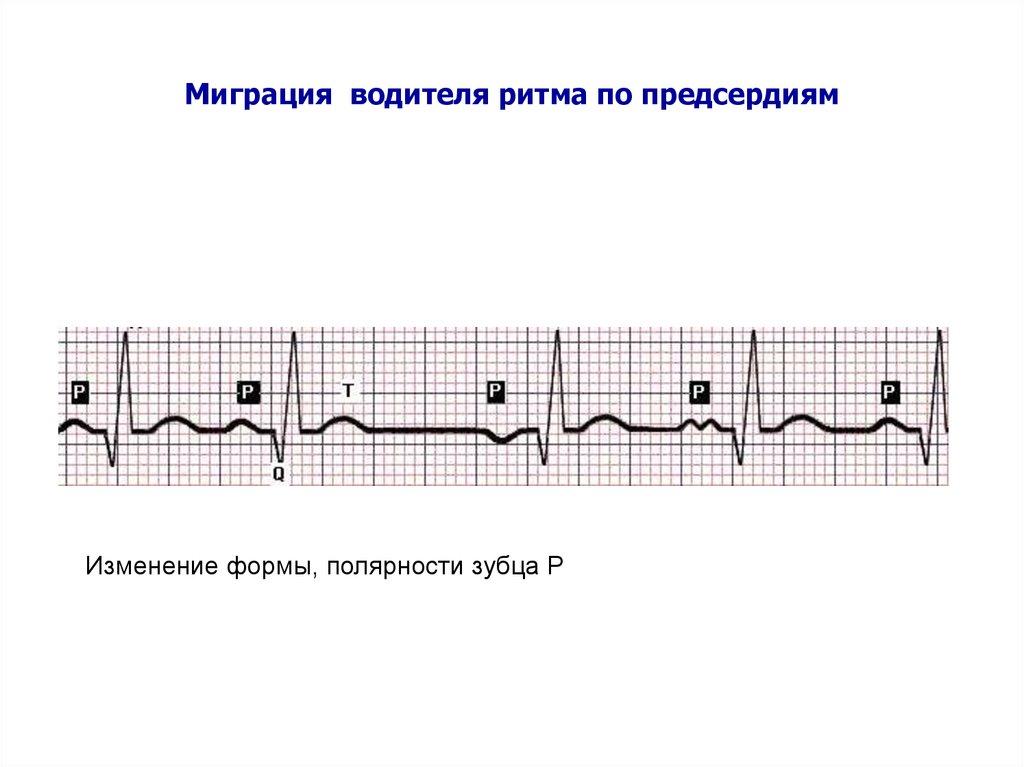 Миграция водителя ритма сердца по предсердиям: как возникает, диагностика, лечение