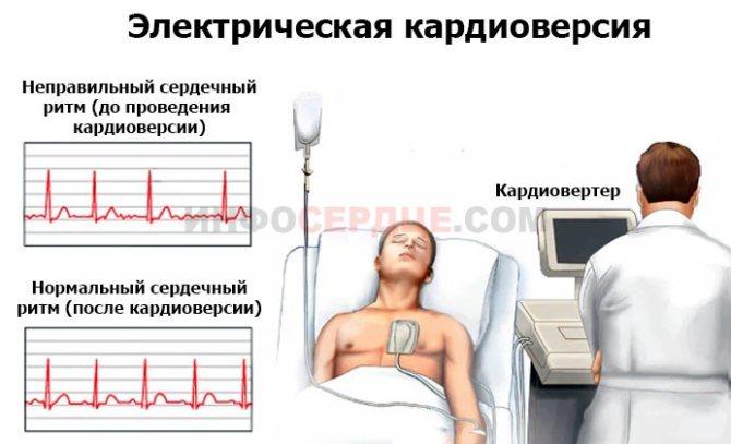 Восстановление сердечного ритма при мерцательной аритмии током - лечение гипертонии