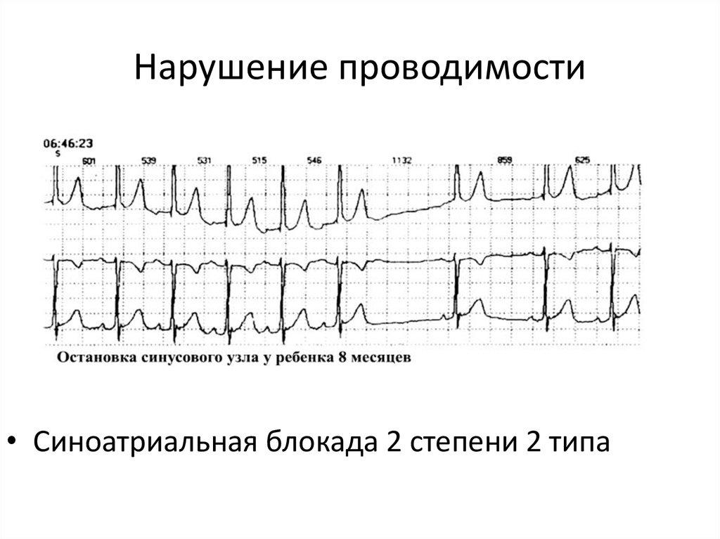 Нарушения ритма и проводимости сердца: лечение, диагностика, неотложная помощь, классификация