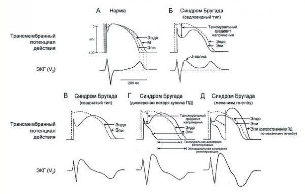 Синдром бругада: причины, симптомы, диагностика, лечение