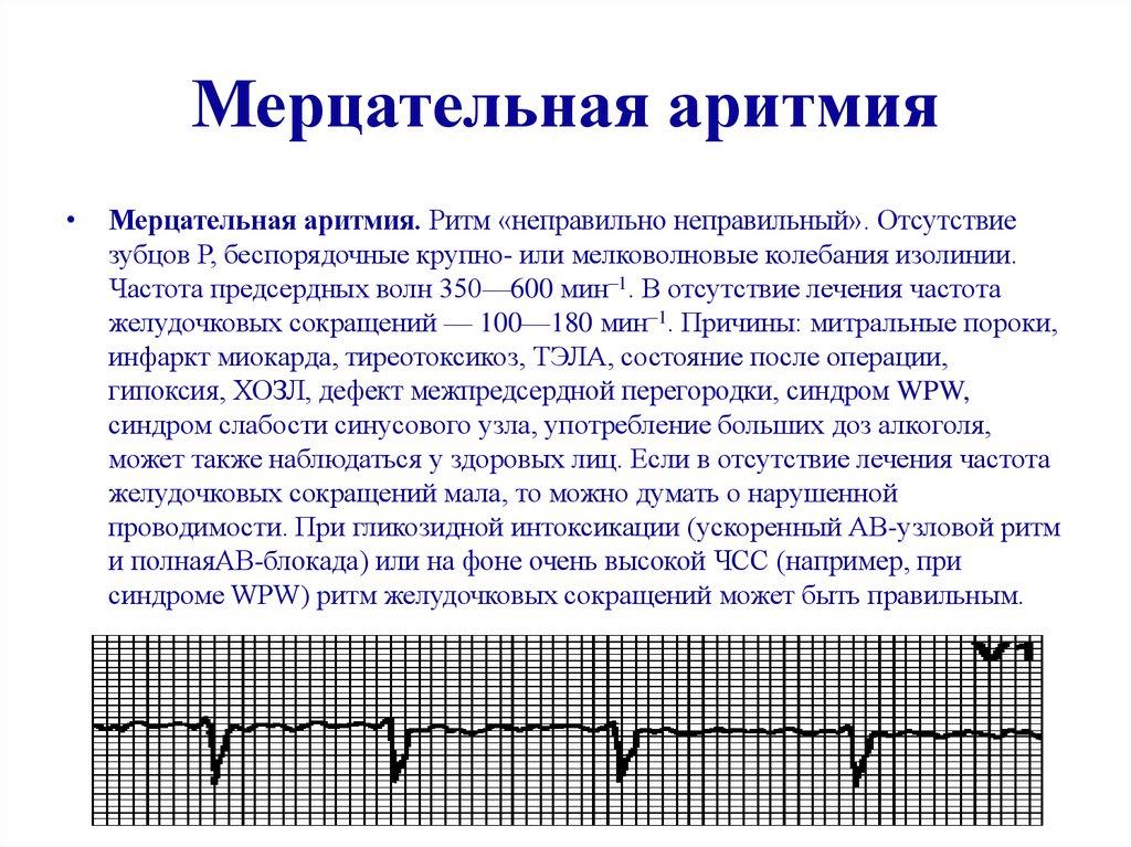 Аритмия сердца: почему возникает, симптомы, лечение народными средствами