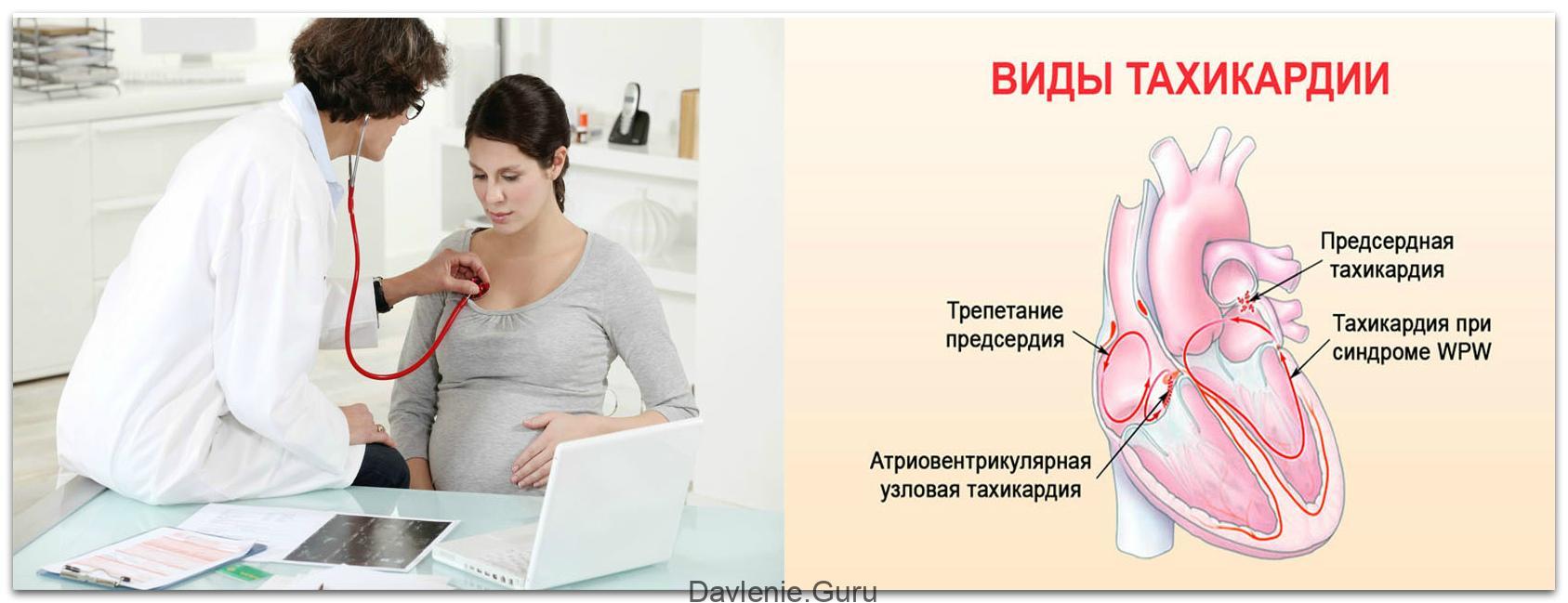 Тахикардия плода при беременности