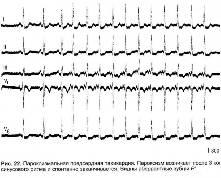 Пароксизмальная наджелудочковая (суправентрикулярная) тахикардия