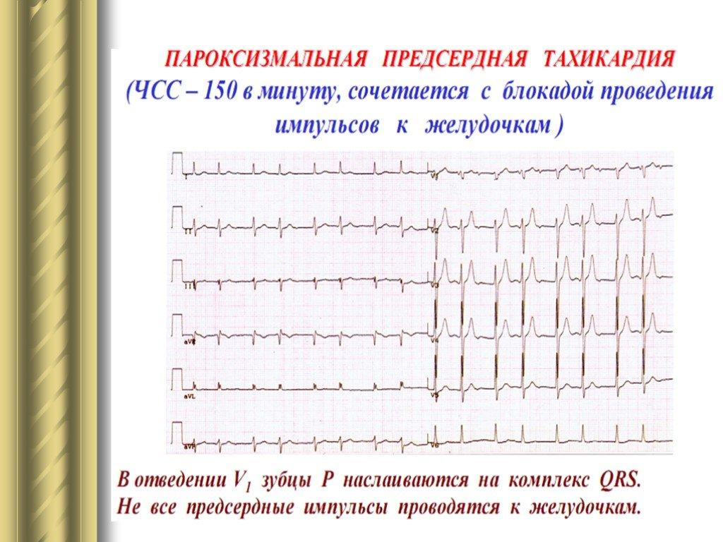 Наджелудочковая (суправентрикулярная) тахикардия и ее пароксизмы: причины, лечение, признаки на экг