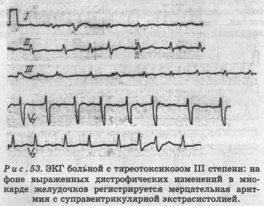 Щитовидная железа и аритмия связь