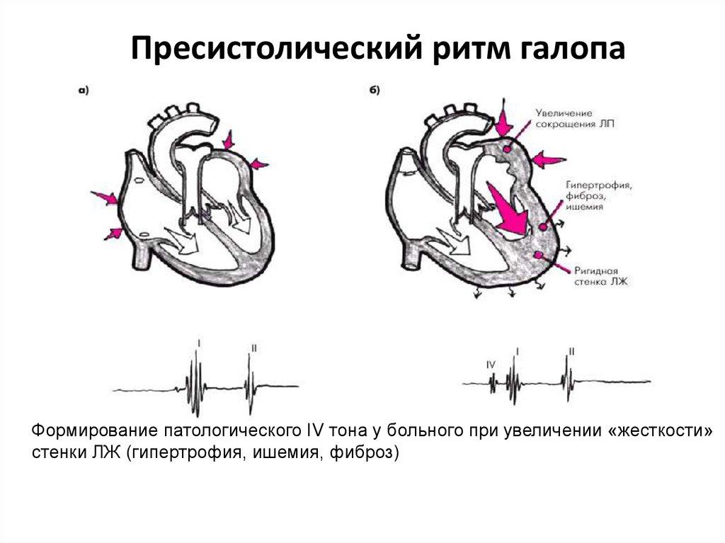 Хроническая сердечная недостаточность ритм голопа, диагностика, диагноз