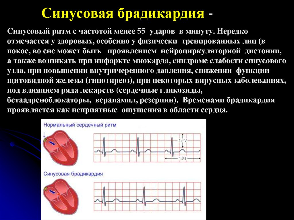 Синусовый ритм сердца что это значит и экг