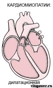 Лечение аритмогенной кардиомиопатии