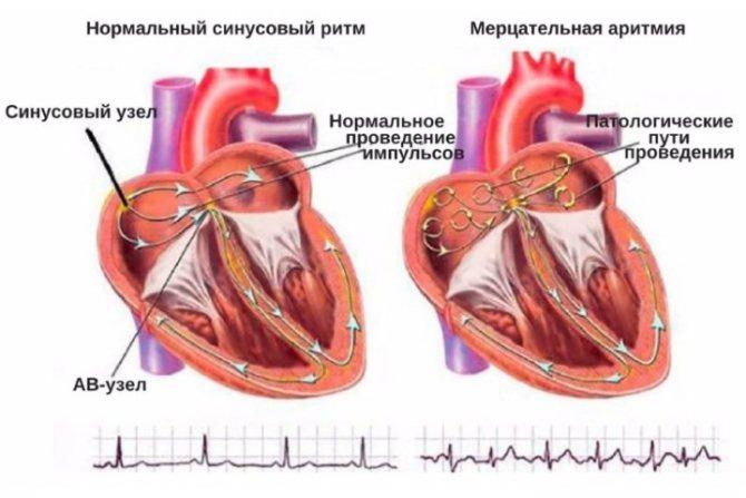 Аритмия сердца от щитовидной железы