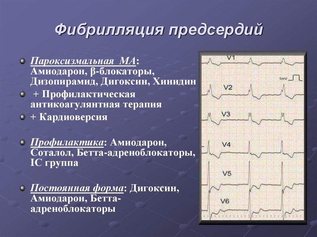 Фибрилляция предсердий: причины, формы, проявления, диагностика, схемы лечения, прогноз
