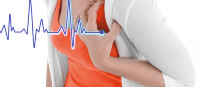 Тахикардия при климаксе симптомы и лечение
