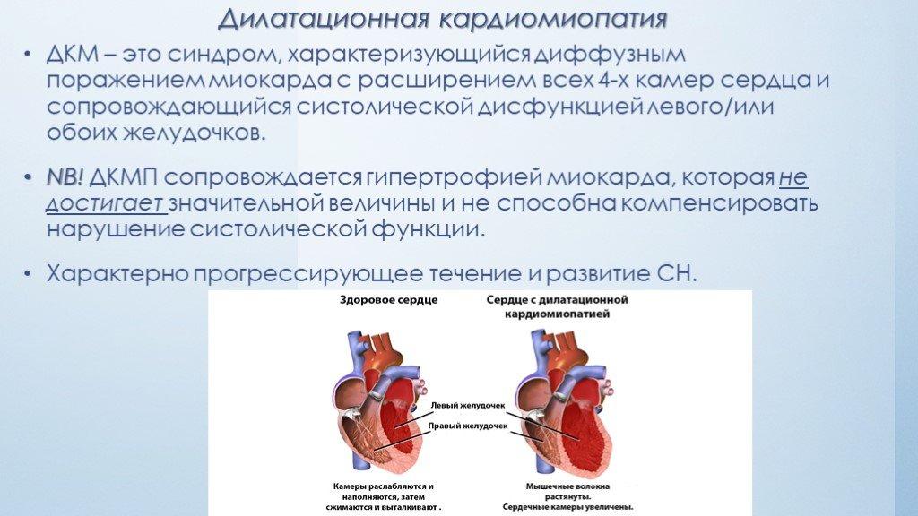 Аритмогенная дисплазия–кардиомиопатия правого желудочка - доказательная медицина для всех