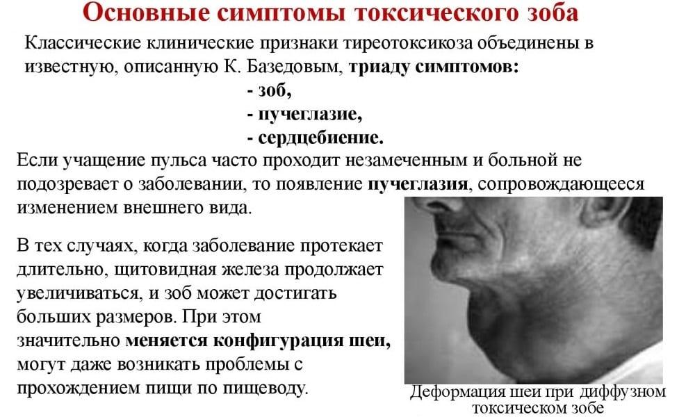 Тахикардия при заболевании щитовидной железы