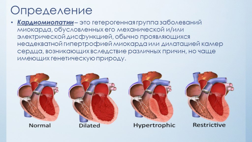 Гипертрофическая кардиомиопатия: симптомы, причины, формы и лечение
