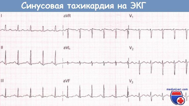 Синусовая тахикардия сердца: причины, симптомы, лечение