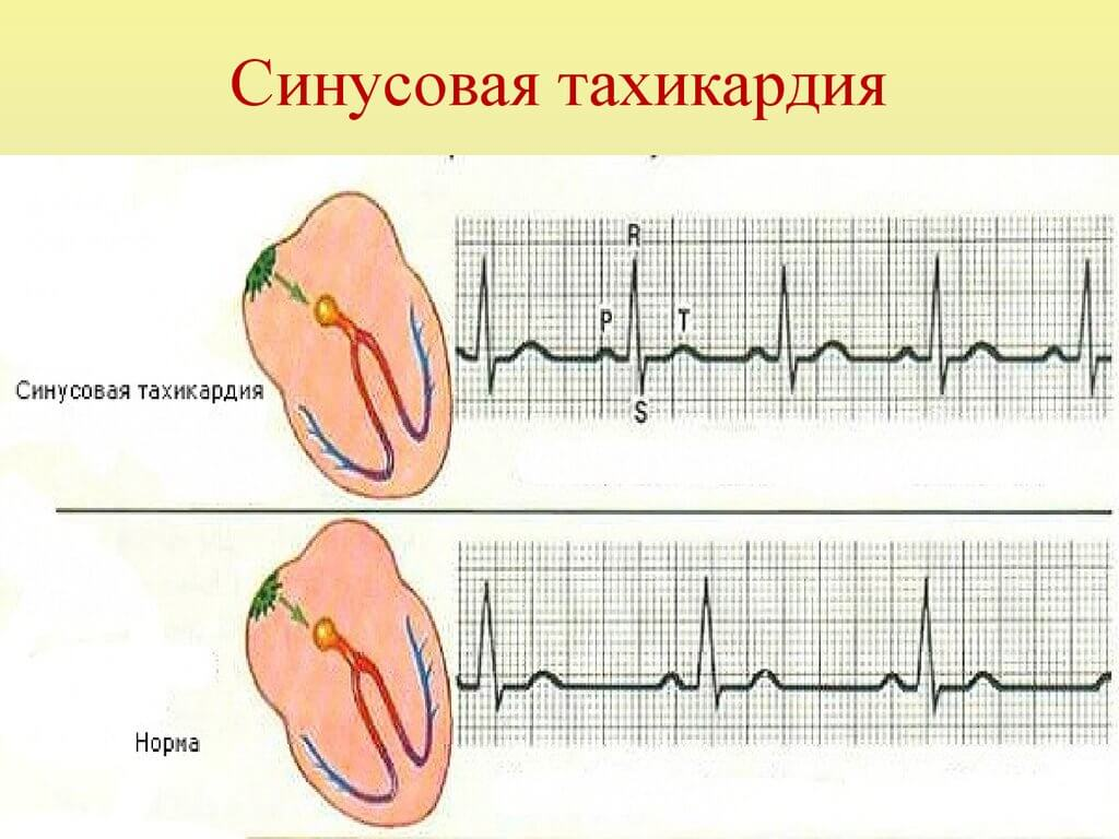 Тахикардия. причины, симптомы, признаки, диагностика и лечение патологии :: polismed.com