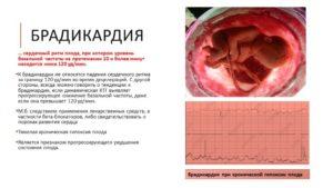 Аритмии у беременных