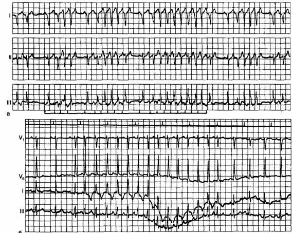 Наджелудочковые нарушения ритма сердца у взрослых