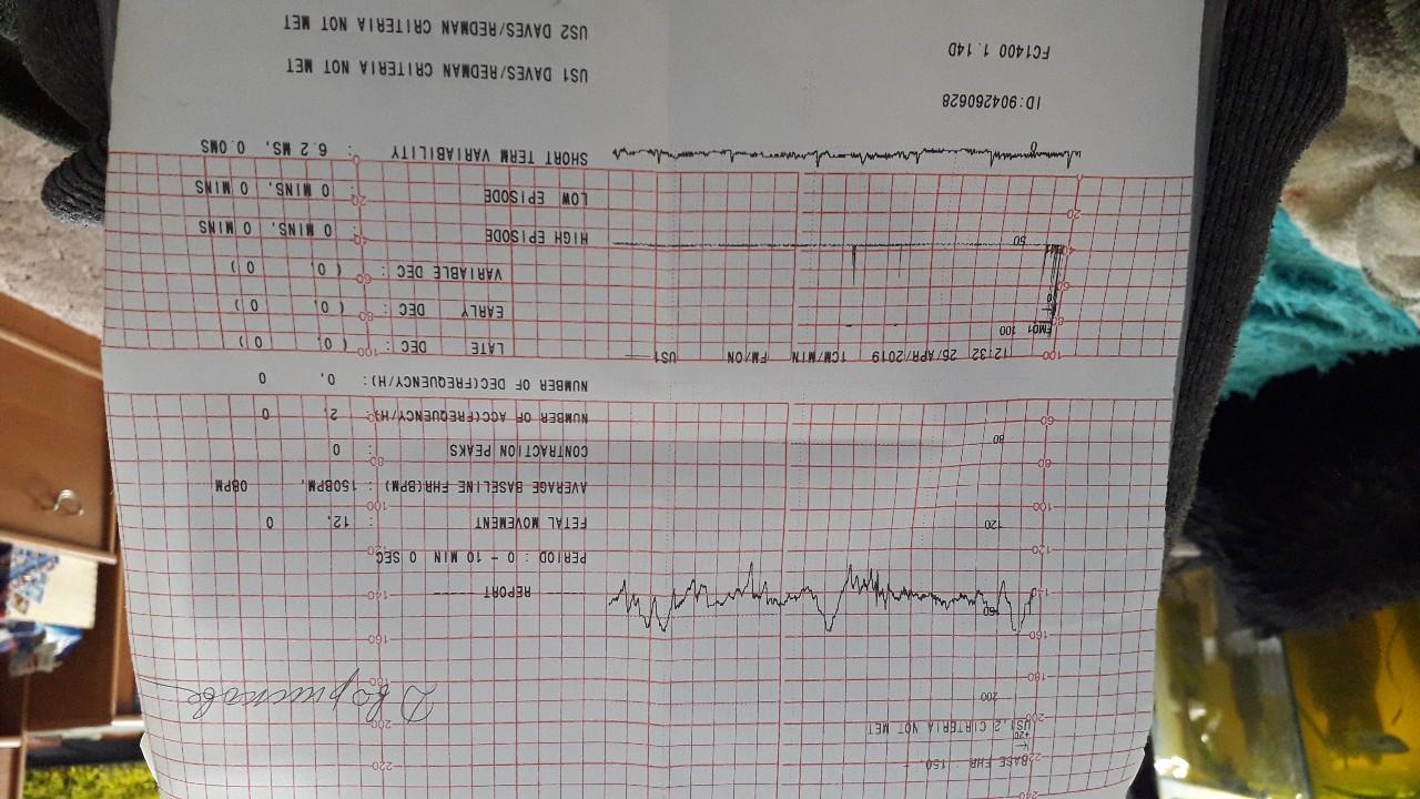 Что значит снижение вариабельности сердечного ритма