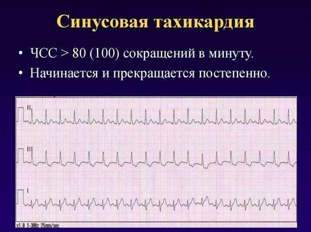 Синусовая тахикардия: что это, причины, лечение, симптомы