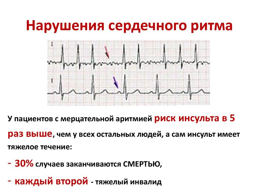 Экстрасистолия сердца - сбой в сердечном ритме