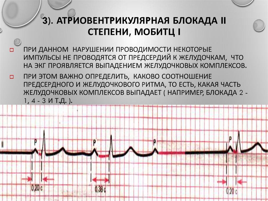 Атриовентрикулярная блокада третьей степени (полная блокада)